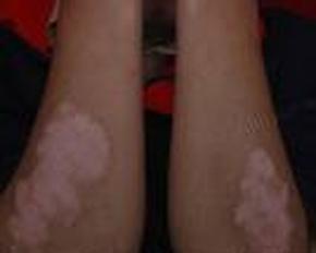 一般上肢白癜风的临床症状图片有哪些