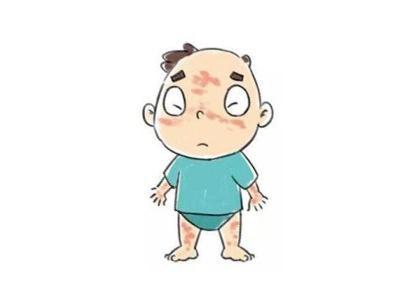 婴幼儿患白癜风会有哪些症状特征