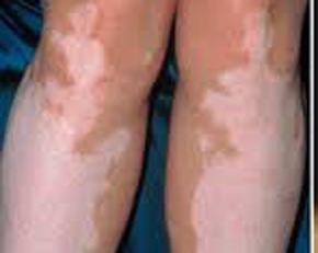 膝盖长白癜风常见的有什么症状图片