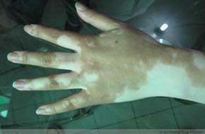 孩子手指上有三块白斑是白癜风吗